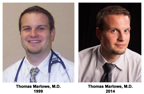 Thomas Marlowe, M.D. - Before and After