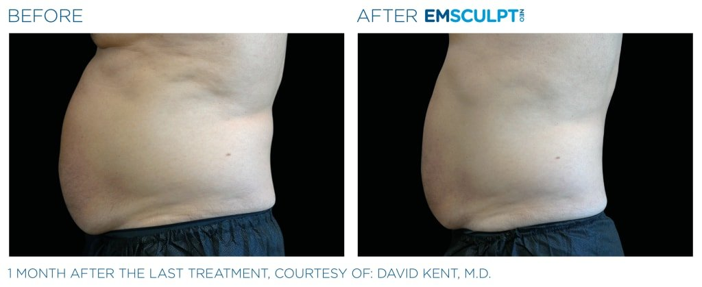 Before & After EMSCULPT NEO - 1 month after the last treatment