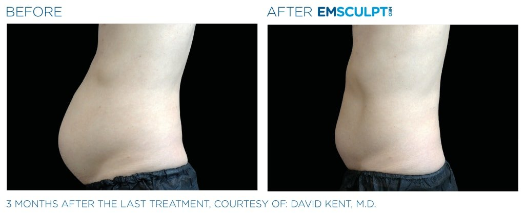 Before & After EMSCULPT NEO - 3 months after the last treatment