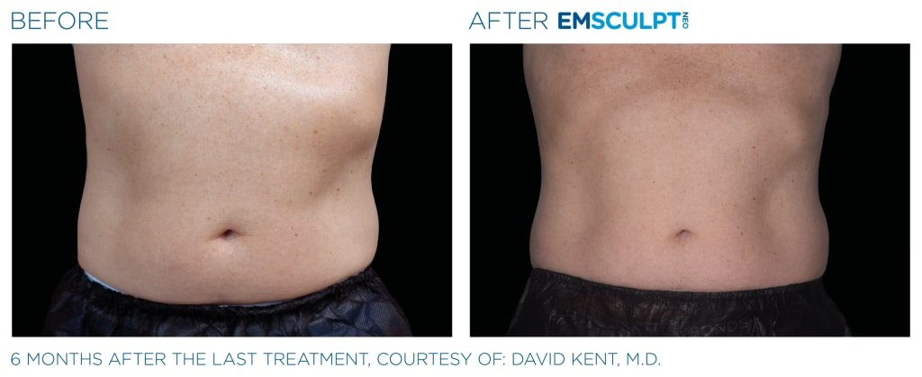 Before & After EMSCULPT NEO - 6 months after the last treatment